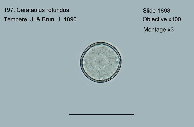 197. Cerataulus rotundus