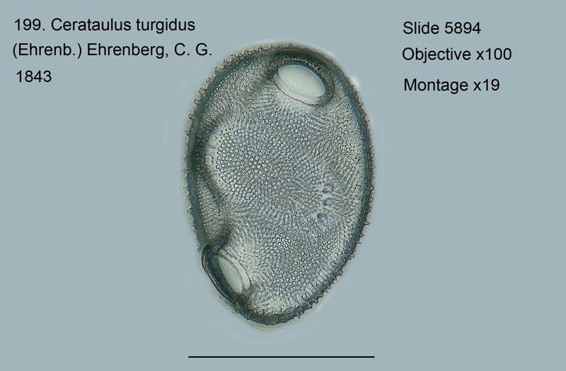 199. Cerataulus turgidus