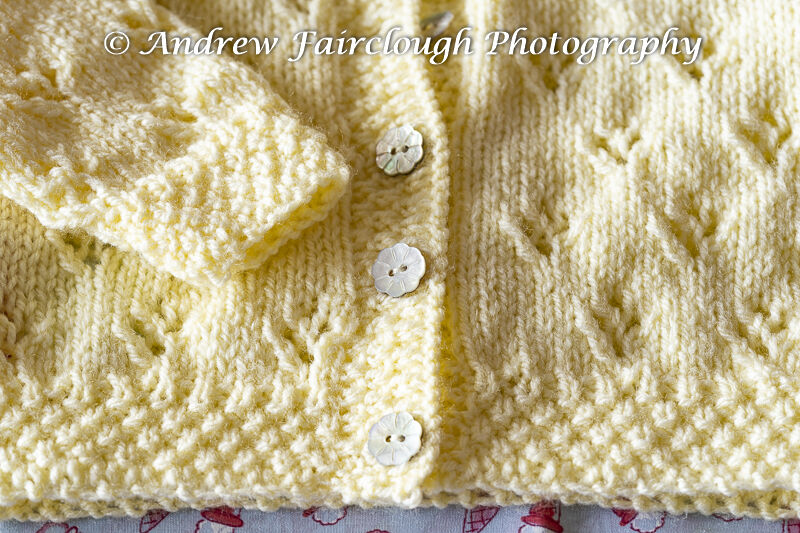 Four Hole Lace Collared Cardigan button & pattern detail - Yellow