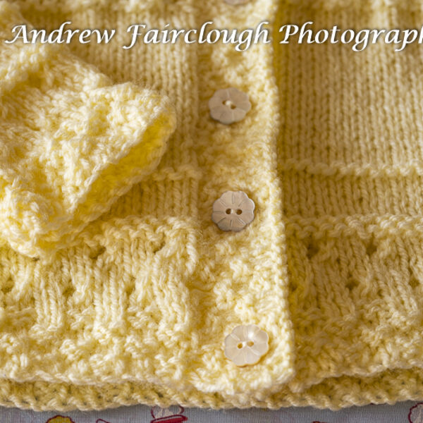 Yellow Cardigan button and pattern detail