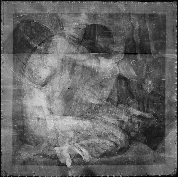 X-ray of Nude