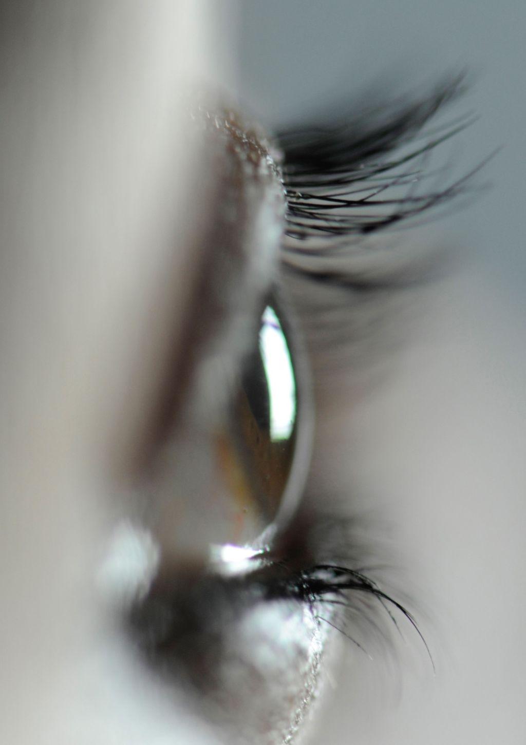 3021 - eye profile