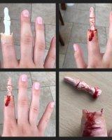 Exposed finger bone