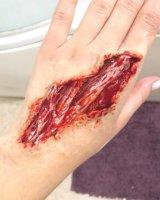 Exposed tendons