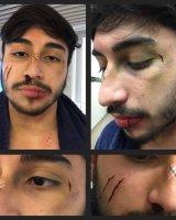 Facial wounds