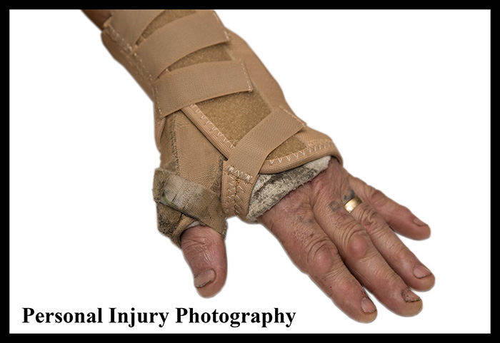 Personal Injury Photography