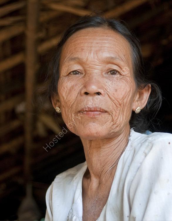 Chin Lady