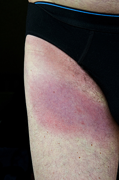 Lyme Disease caused by tick bite. Dartmoor, England