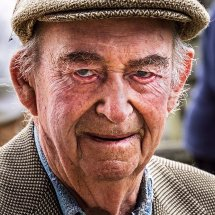 Rheumy eyes at 91