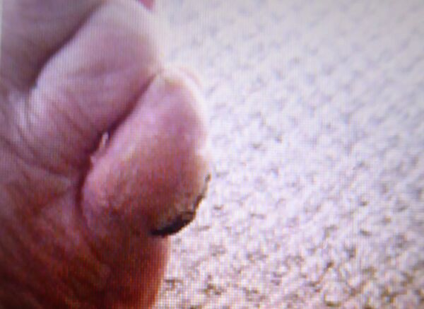 Before Toe