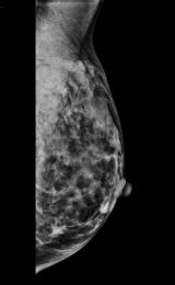 Mammogram showing hard to detect, invasive lobular carcinoma