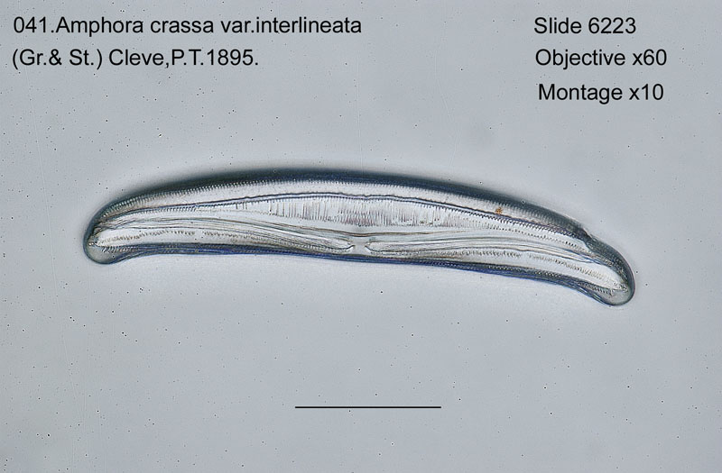 041Amphora crassa var. interlineata