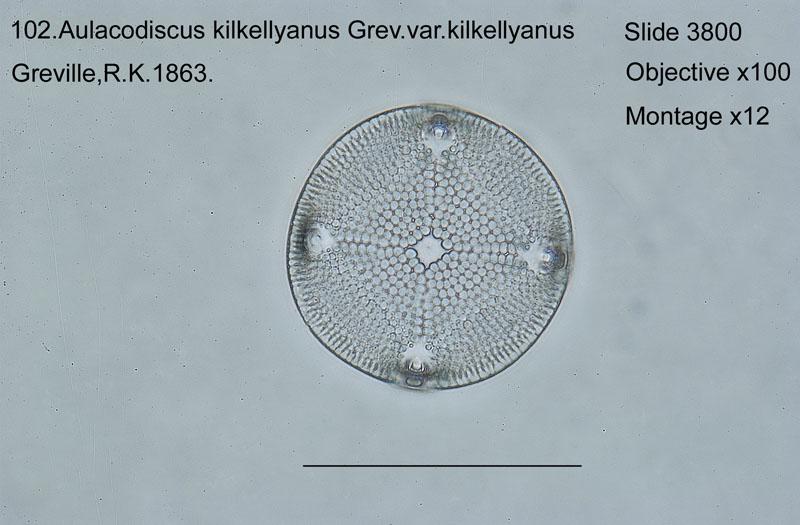 102 Aulacodiscus kilkellyanus