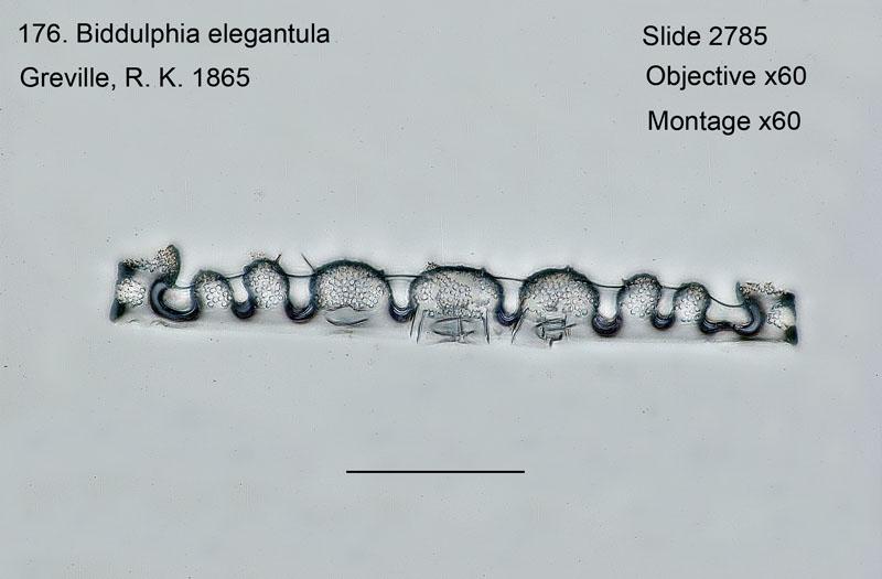 176 Biddulphia elegantula Girdle view