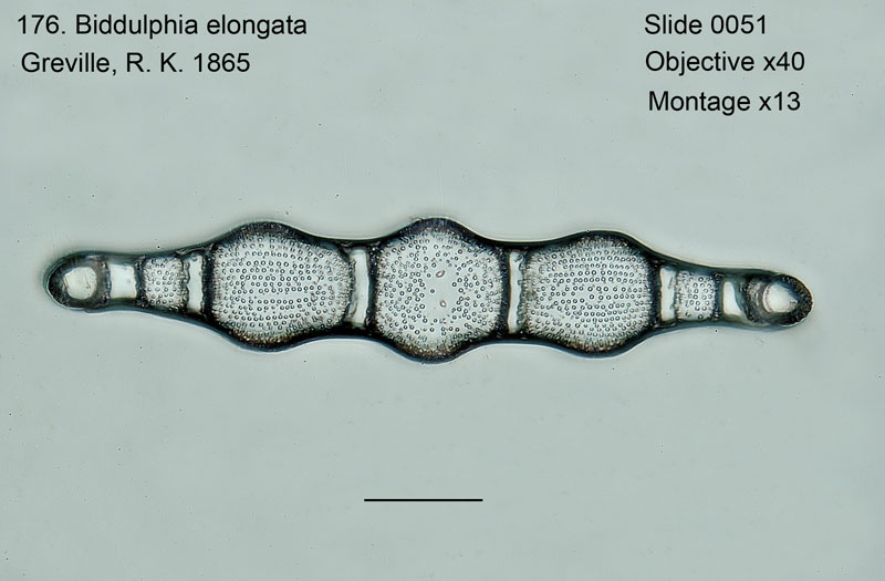 176 Biddulphia elegantula Valve view
