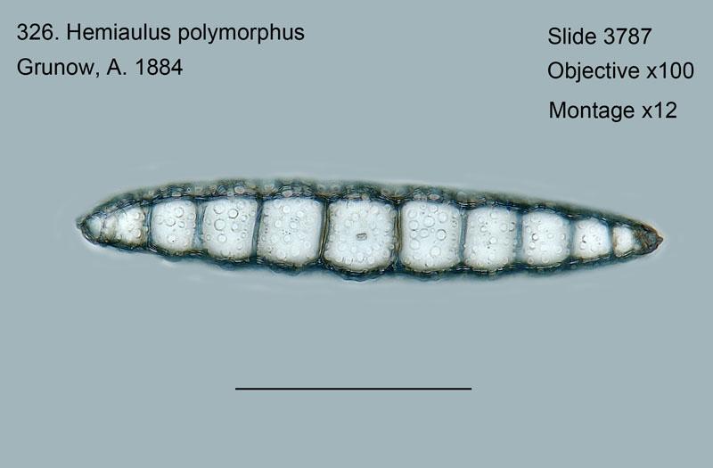 326. Hemiaulus polymorphus Valve View