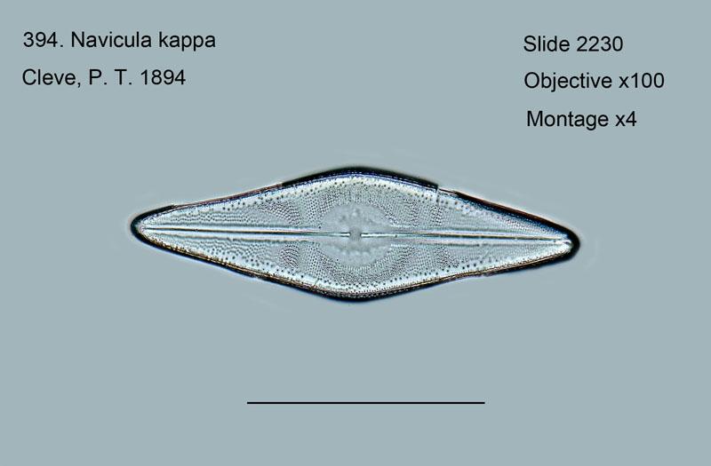 394. Navicula kappa