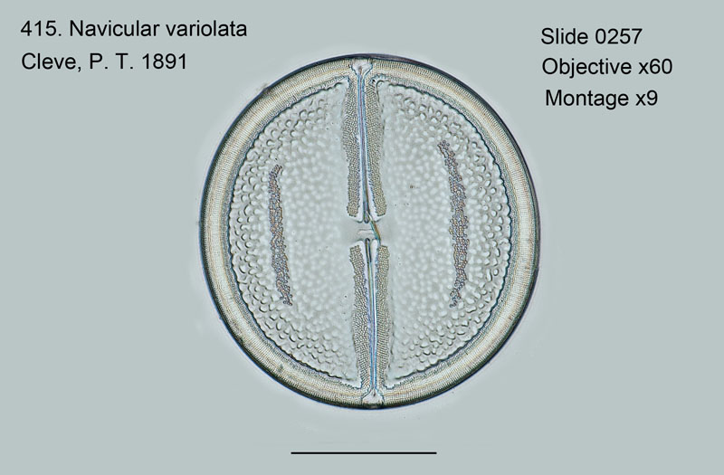 415. Navicula variolata