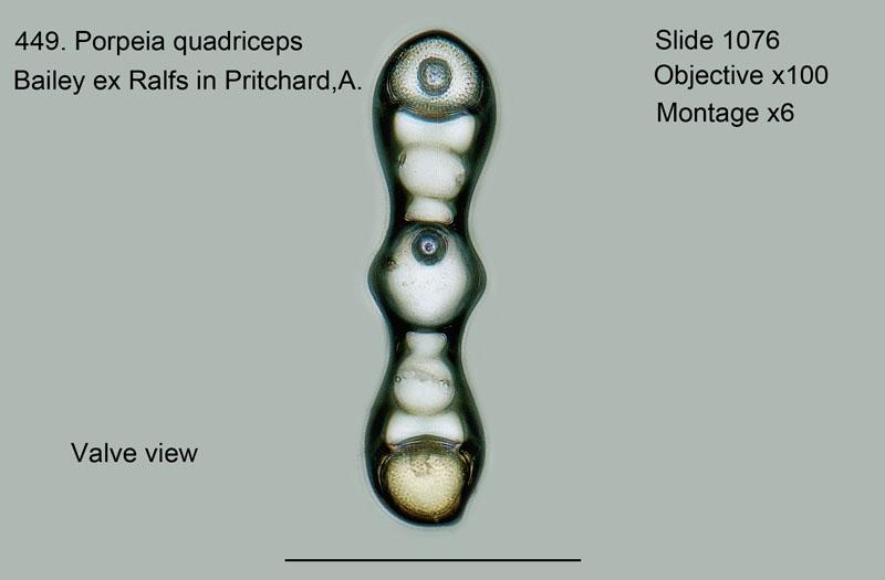 449. Porpeia quadriceps