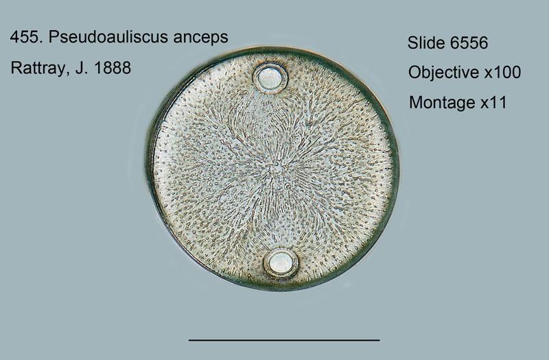 455. Pseudoauliscus anceps
