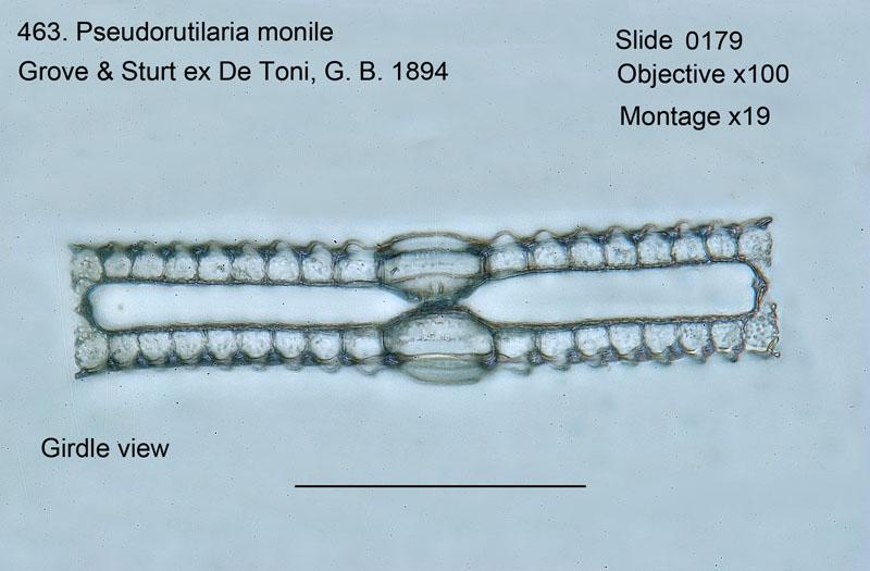 463. Pseudorutilaria monile. Girdle view.