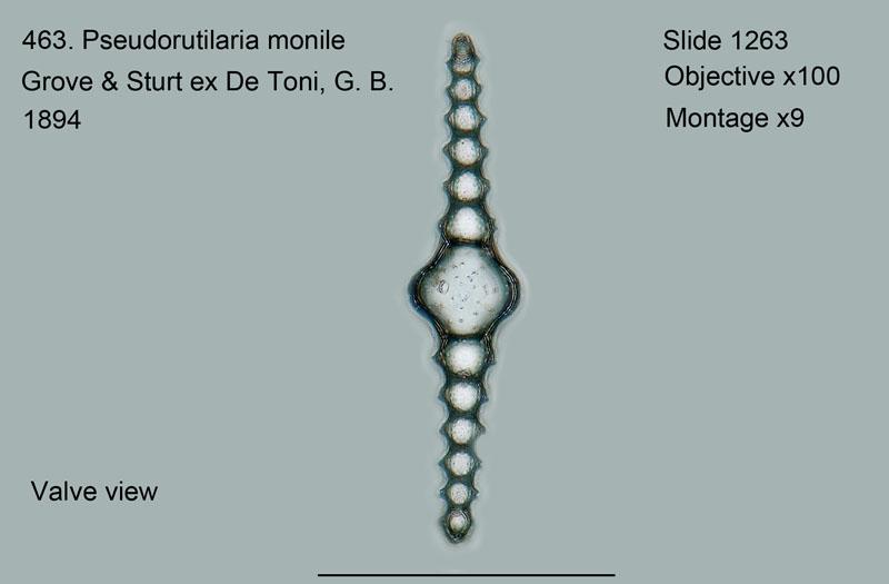 463. Pseudorutilaria monile. Valve view