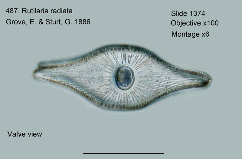 487. Rutilaria radiata. Valve view.