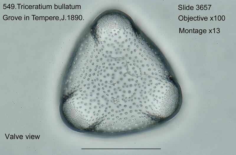 549. Triceratium bullatum. Valve view.