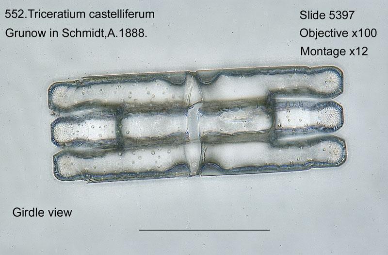 552. Triceratium castelliferum. Girdle view.