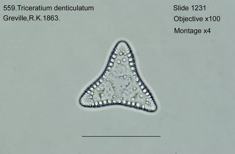 559. Triceratium denticulatum