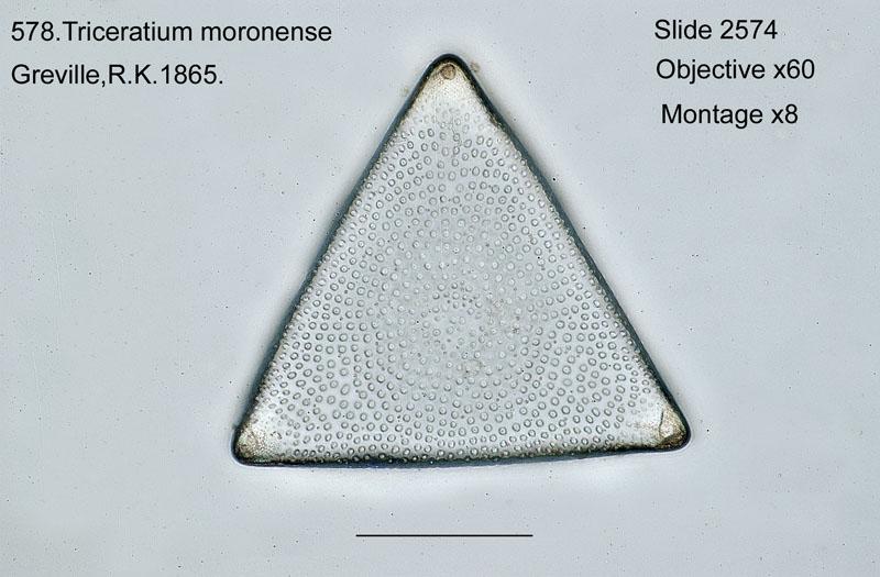 578. Triceratium moronense