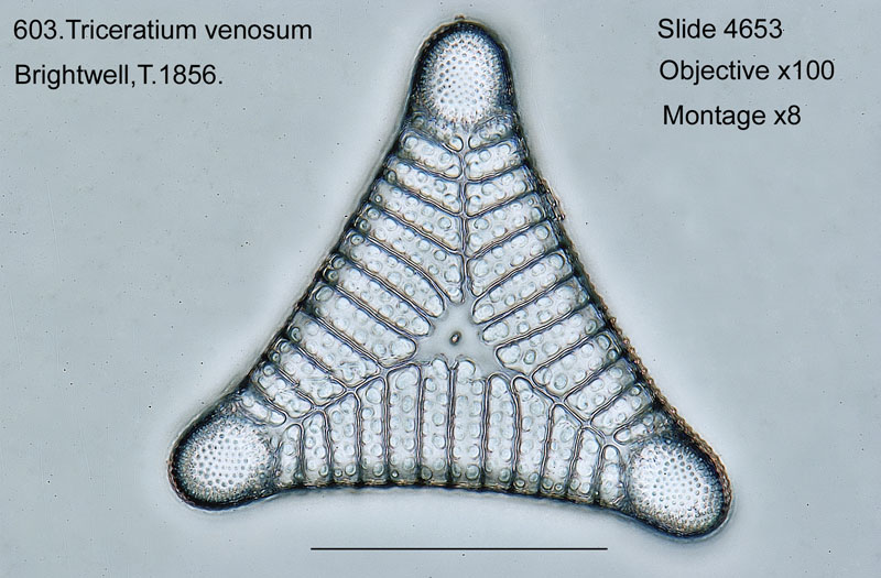 603. Triceratium venosum