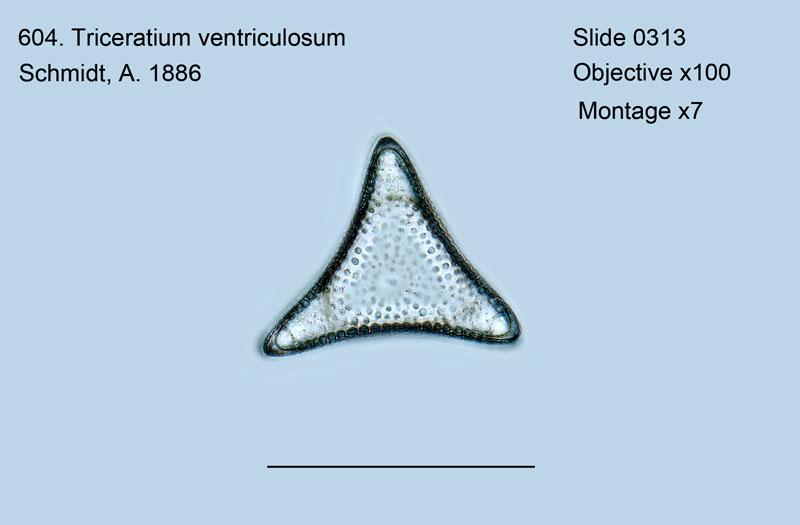 604. Triceratium ventriculosum
