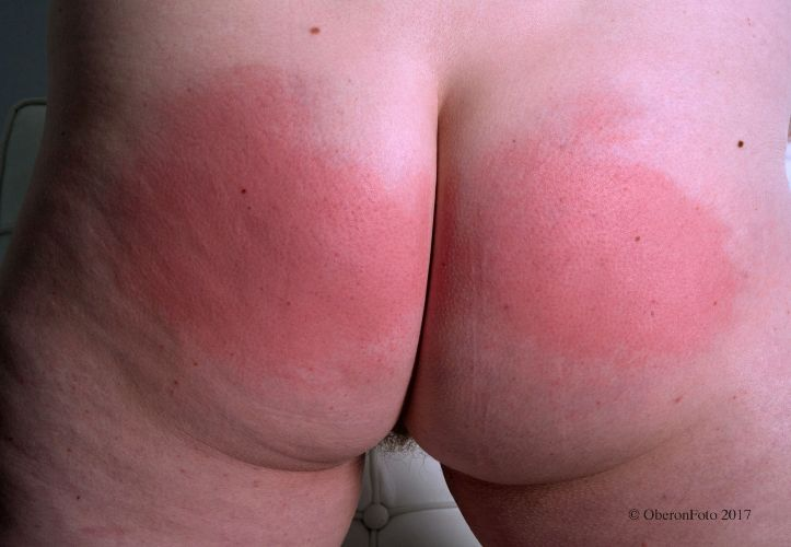Lucy - Reddened arse