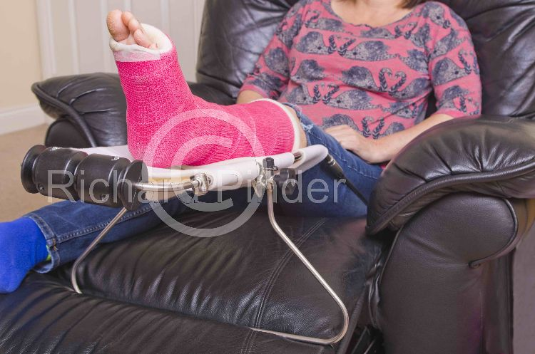 Lady with Broken Ankle