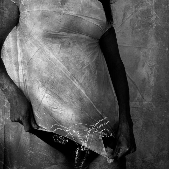 Anatomised II