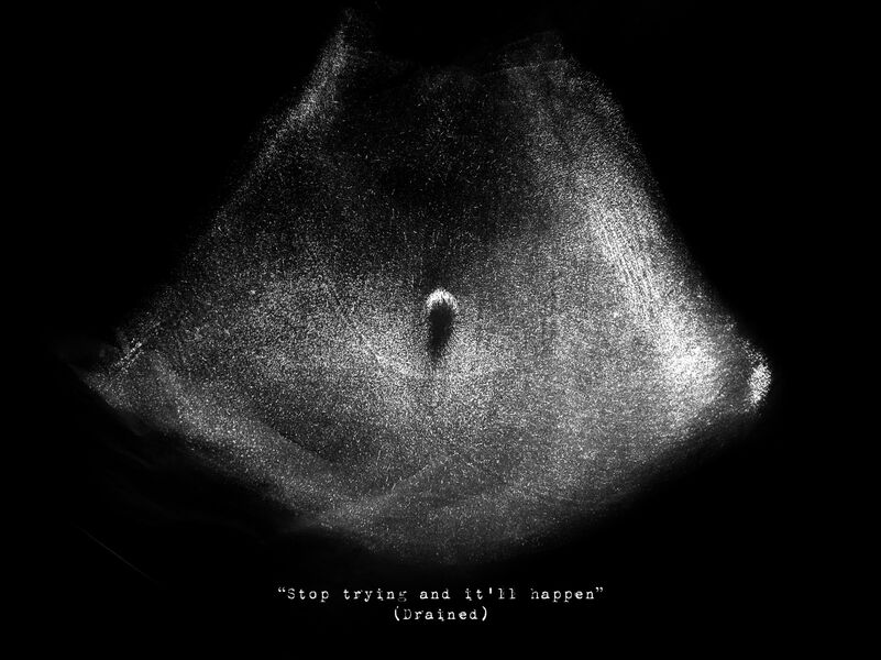 black and white sonogram image of a navel, about infertility