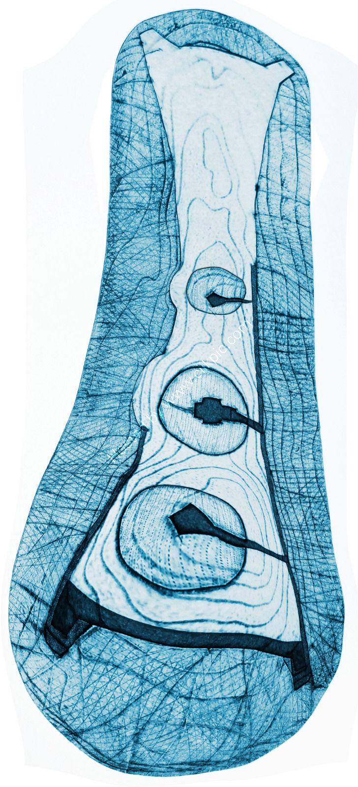 Horned cairn